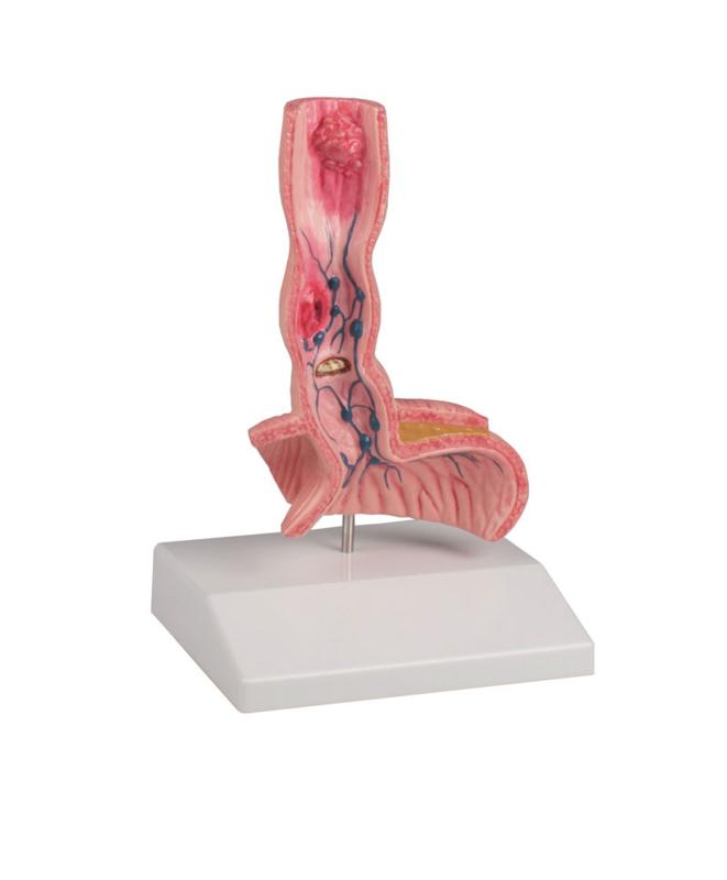 Anatomisch model Slokdarm met 6 ziektebeelden