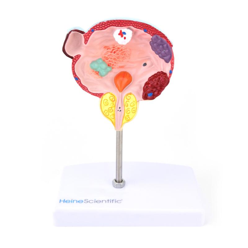 HEINE SCIENTIFIC Anatomisch model blaas met ziektebeelden