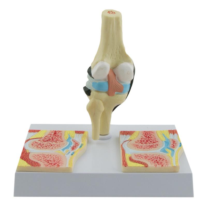 HEINE SCIENTIFIC Anatomisch model knie met reuma